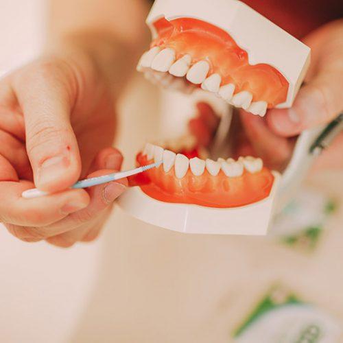 Vorführung Reinigung Interdentalbürste Zahnarzt Haldensleben